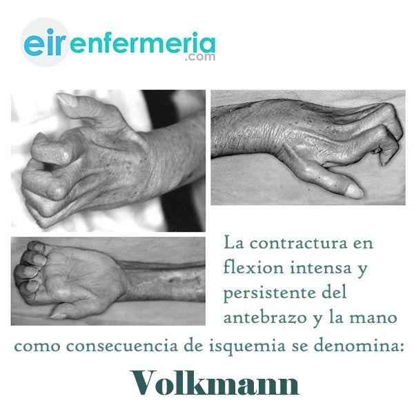 contractura isquemica de volkmann pdf