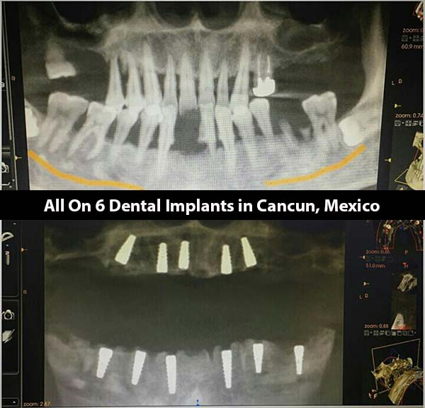 all on six dental implants pdf