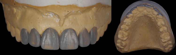 como hacer encerado dental pdf