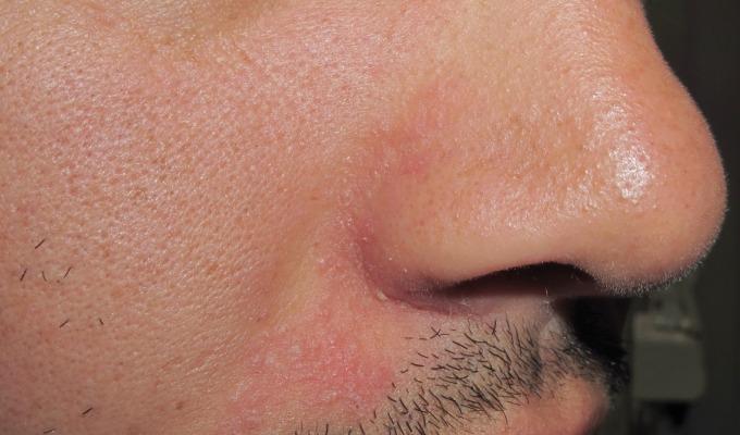 causa de la dermatitis seborreica pdf